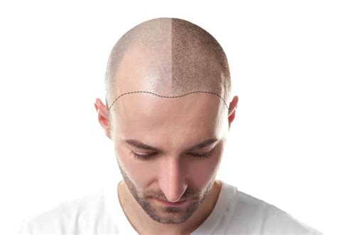 hair simulation scalp micropigmentation smp hairwiki