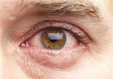 Menjadi Dokter Virus Dalam Sehari ini cara mencegah mata merah alodokter