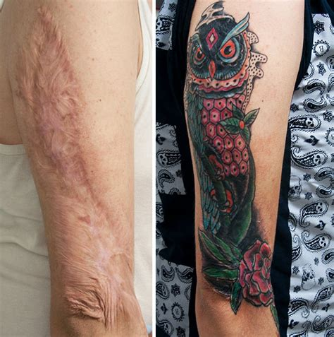 tattoo cover up for scars 10 amazing scar cover up tattoos part 6