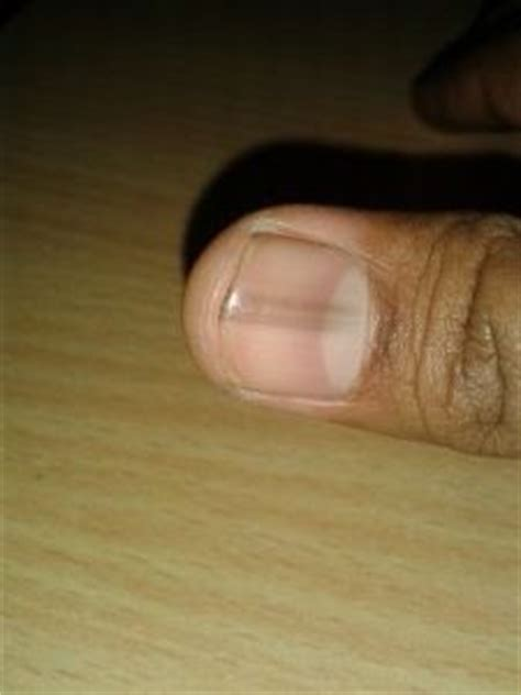 dark line on fingernail 1000 images about nail fungus on pinterest fungus
