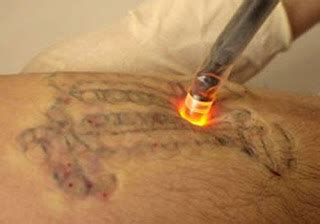 how tattoo process works erase tattoo removal laser tattoo removal the process