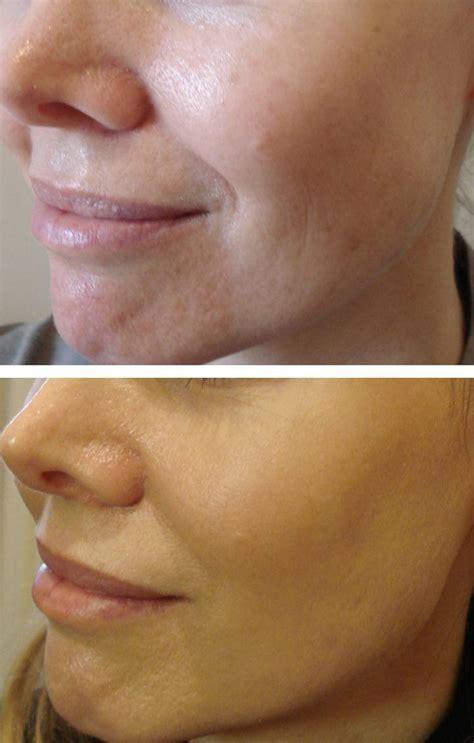 laser skin resurfacing  afters  aesthetic medicine