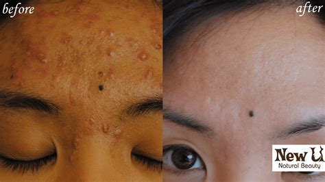 Pimple Dr Bpom For Scar Free Acne Care Berkualitas acne treatment acne scar removal new u professional treatments in las vegas