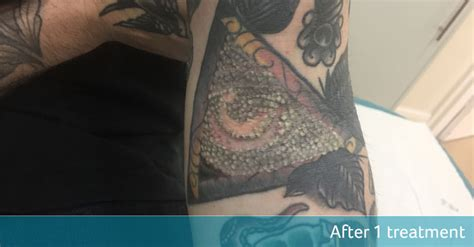 r20 tattoo removal before and after illuminati symbol r20 removal avalon laser