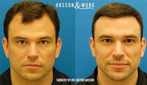 before and after photos of hair transplant surgery with an some of our favourite transformations hasson wong