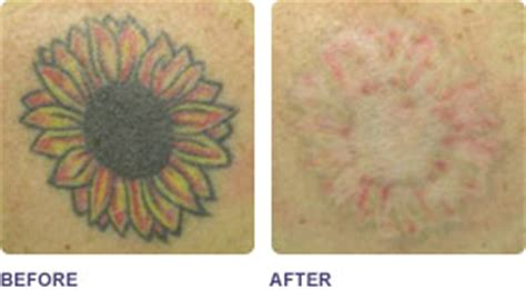 tattoo removal shrewsbury removal before and after lase away hair skin