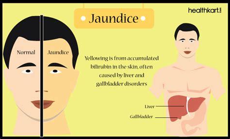 Bilirubin Detox by Jaundice Assessment