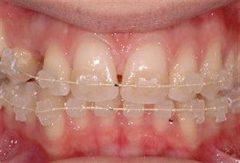 apparecchio denti interno costi ortodonzia estetica studio odontoiatrico dr i