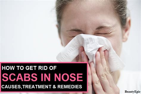 how to get rid of scabs in nose causes treatment remedies