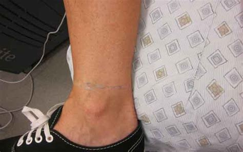 tattoo removal on foot tattoo removal tattoo off palm springs palm desert
