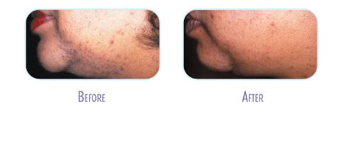 laser tattoo removal raleigh nc laser hair removal before and after gallery bodylase