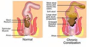 how do you get home home remedies for constipation powerful and effective