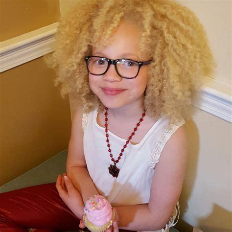 albino haircuts albino models black women hairstyles ava clarke