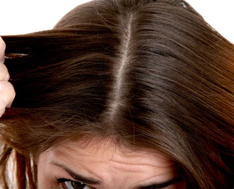 dolor de cuero cabelludo sensibilidad del cuero cabelludocabello pelo chu