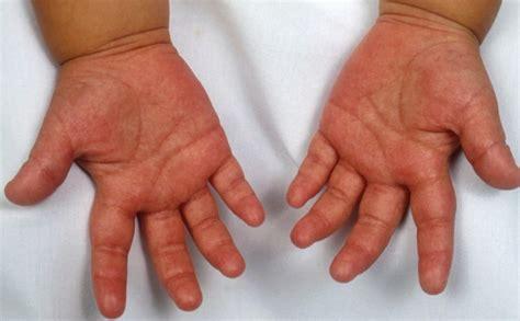 Kawasaki Disease Images by Kawasaki Disease Causes Symptoms Treatment Pictures