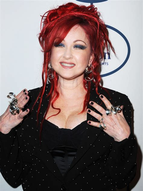cyndi lauper cyndi lauper opens up about battling psoriasis closer weekly
