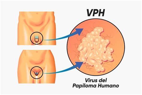 el virus del papiloma humano vph es tan comn como una todo sobre el vph tua sa 250 de