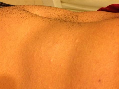 tanning bed rash pictures tanning bed rash photos