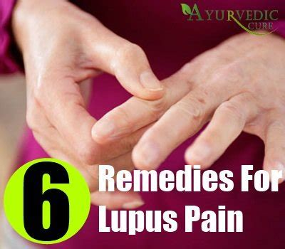 lupus home remedies treatments and cure