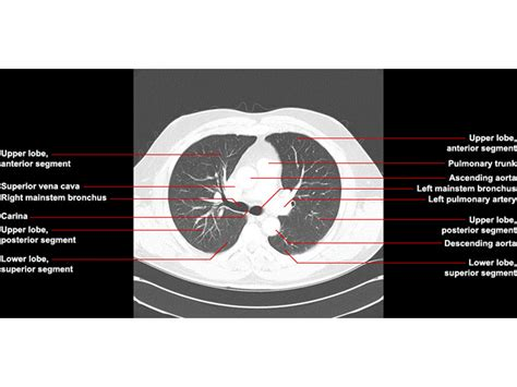 Telephone Lookup Ct Ct Chest Images Search