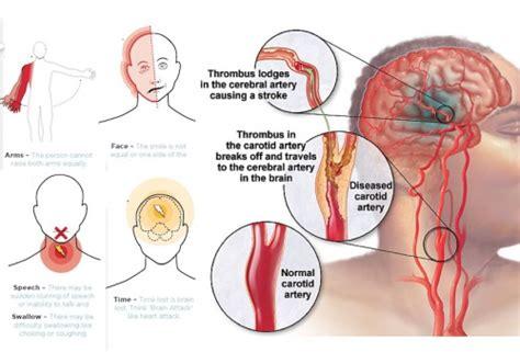 gejala penyebab penyakit stroke dan cara penyembuhan cara alami mengobati penyakit stroke yakni dengan obat