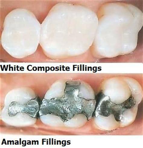 Resin 424 Rsn 424 A composite fillings