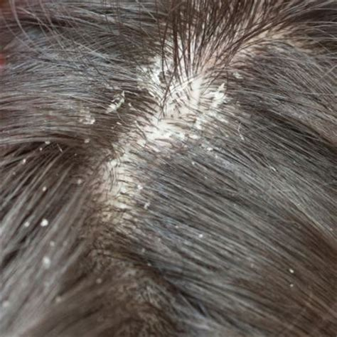 how to get rid of dandruff how to get rid of dandruff hira tips