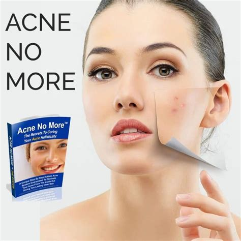 Acne No More Review acne no more review read this