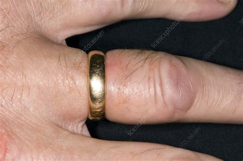 swollen finger with a tight ring stock image c002 9591