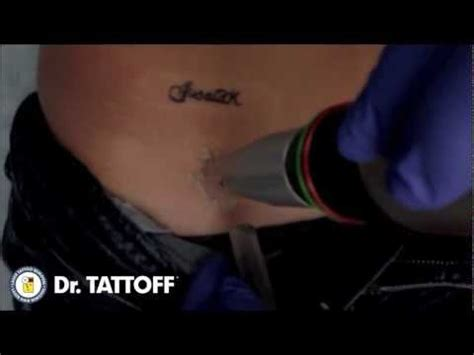 tattoo removal dr tattoff name is removed from hip during laser