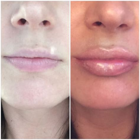Augmentation Fill by 25 Best Ideas About Lip Injections On Lip