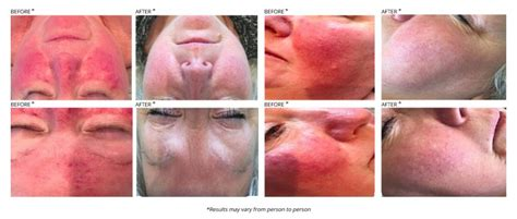 acne laser treatment the laser treatment clinic london laser acne treatment evolve private aesthetics clinic bolton