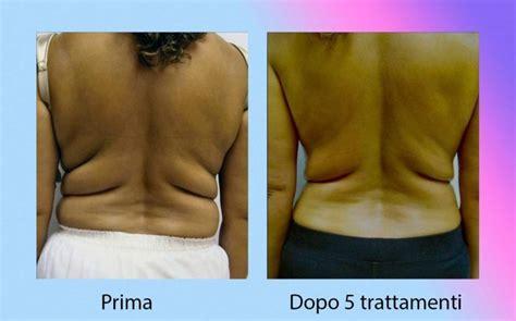 alimenti bruciano il grasso addominale come eliminare il grasso addominale in modo pratico
