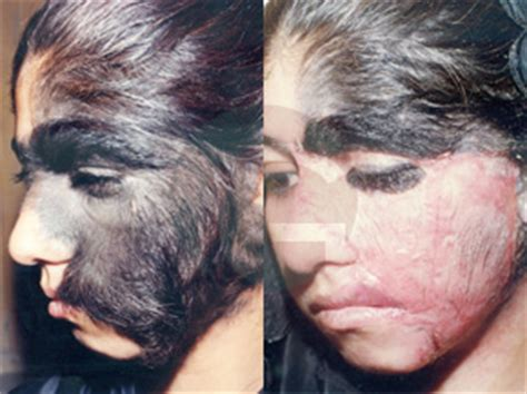 before amp after ganatra plastic surgery