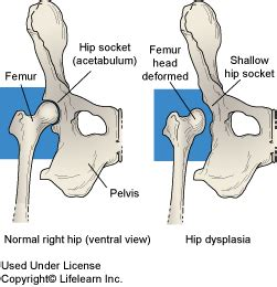 canine hip dysplasia hip dysplasia in dogs penn hip in