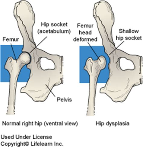 golden retriever hip dysplasia what is hip dysplasia causes symptoms and diagnosis new owners