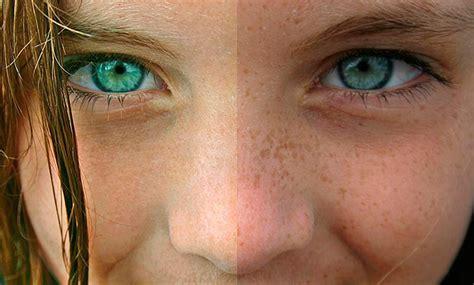 porque salen manchas en la cara manchas blancas en la piel identif 237 calas con fotos