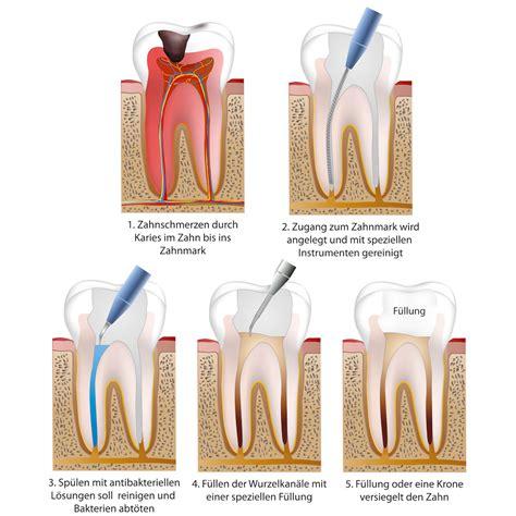 wann muss eine wurzelbehandlung gemacht werden endodontie wurzelbehandlung zahn 228 rzte buxtehude