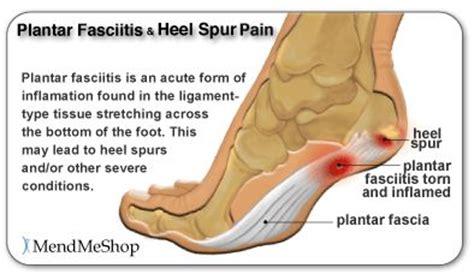 Detox Foot Pads Plantar Fasciitis by Les 25 Meilleures Id 233 Es Concernant R 233 Flexologie Plantaire