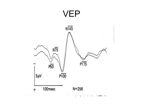 normal pattern vep v isual evoked potentials