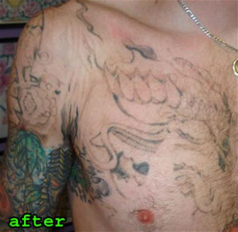 tattoo removal blue ink removal removal removal