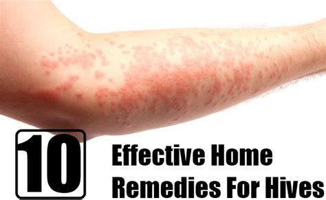 10 effective home remedies for hives diy home remedies
