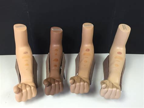test mantoux mantoux test result health care quot qsota quot tips and