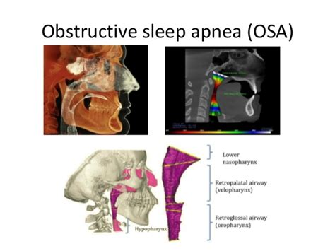 How Sleep Apnea Can Hurt A Relationship by Obstructive Sleep Apnea Osa The Relationship Of Airway