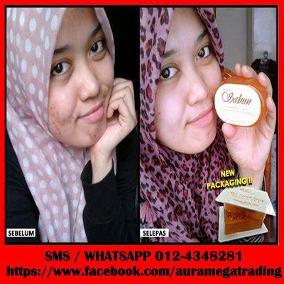 Sabun Secret kedaipu3 mz secret soap sabun vitamin a c e