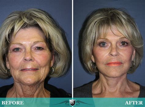 Is A Mini Lift A Facelift Alternative by Before And After Gallery Of Cosmetic Surgery Procedures