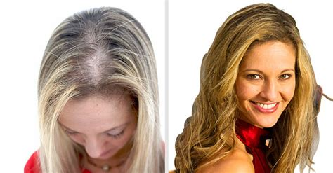 haircuts for young women with alopecia hair restoration replacement for men and women hair club