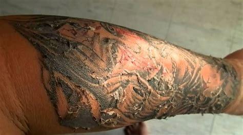 tattoo peeling process   care   doesnt skincarederm