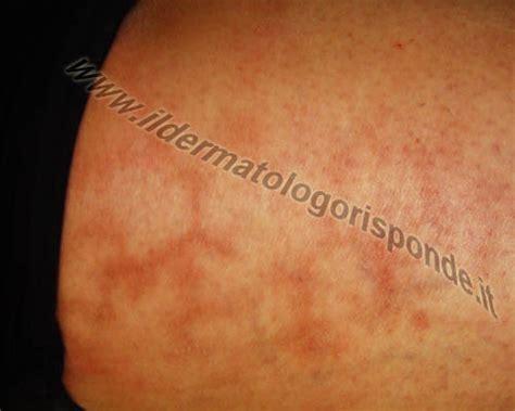 prurito interno cosce eritema da scaldino e altre cause di macchie sulle gambe