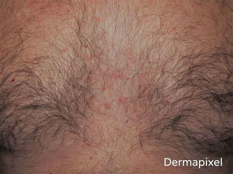 granitos en el cuero cabelludo dermapixel dermatitis seborreica no es piel seca